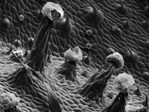 Detalle de tricomas glandulares